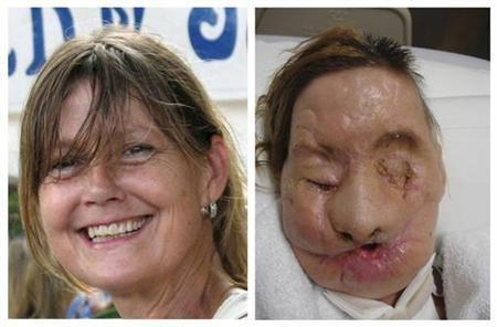 A combination photo shows face transplant recipient Charla Nash, of Stamford, Connecticut, before (L) and after her injury, in these undated photographs released on June 10, 2011. Nash, who was mauled by a chimpanzee in 2009, has received a full face tran