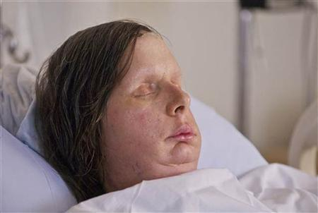 Face transplant recipient Charla Nash, of Stamford,