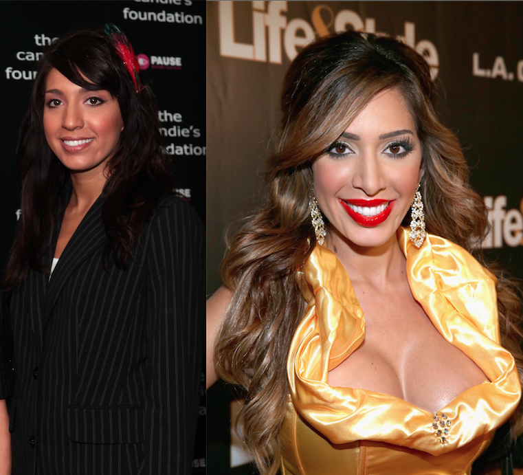 farrah abraham before and after