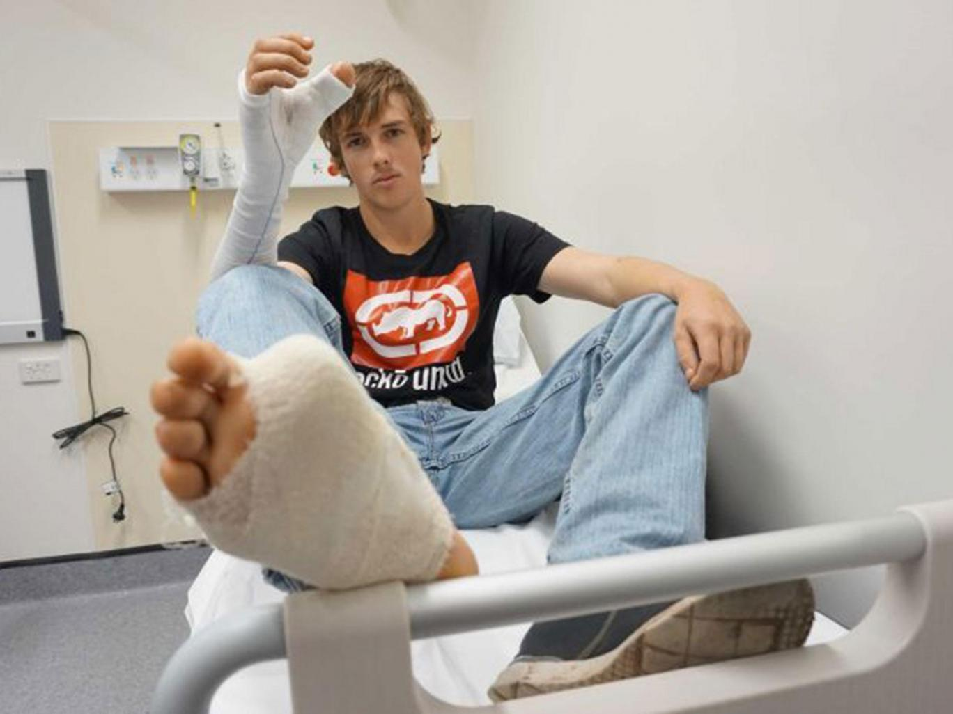 Australian man's thumb surgically replaced by toe