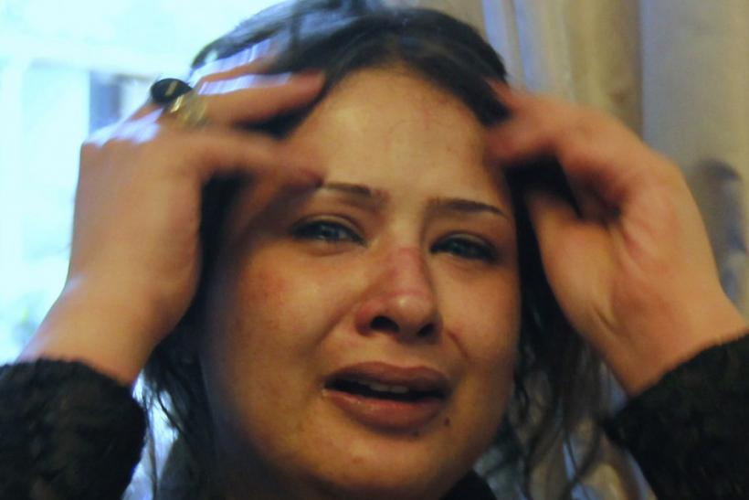 Bruises are seen on the face of Libyan woman Obaidi as she cries at a hotel in Tripoli