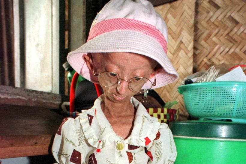 Rare Aging Disease Thwarted By New Technology