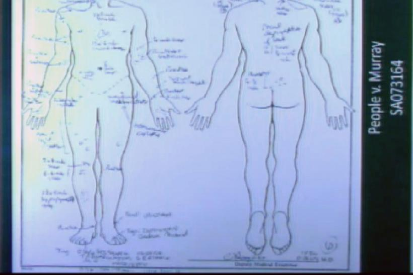 A projected chart showing the marks on Michael Jackson's body is shown as forensic pathologist Dr. Christopher Rogers testifies in Dr. Conrad Murray's trial in the death of pop star Michael Jackson in Los Angeles