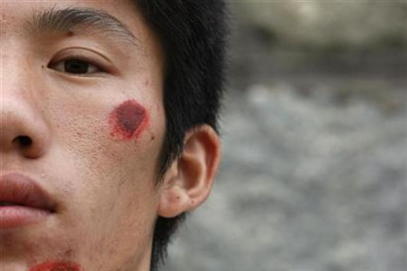 A wounded villager from Wukan is seen after a riot with the police the day earlier in Lufeng