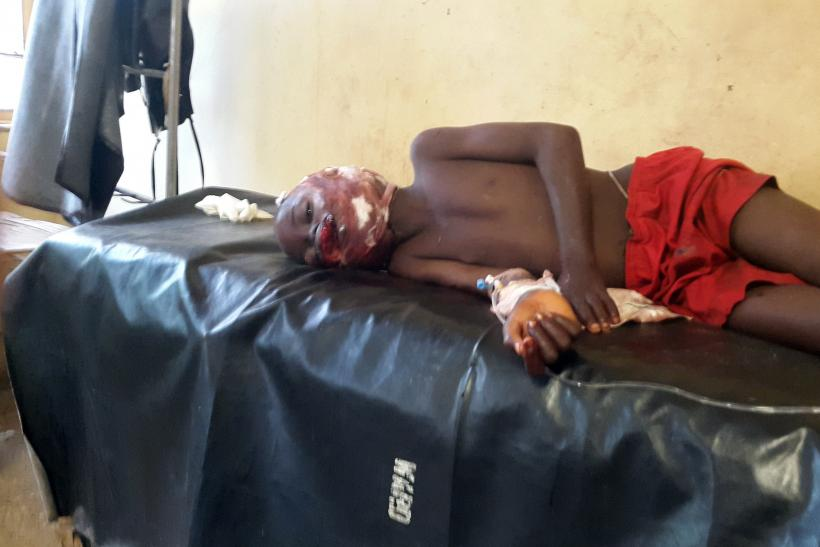 Bombing Victim, Damaturu, Nigeria, June 18, 2014