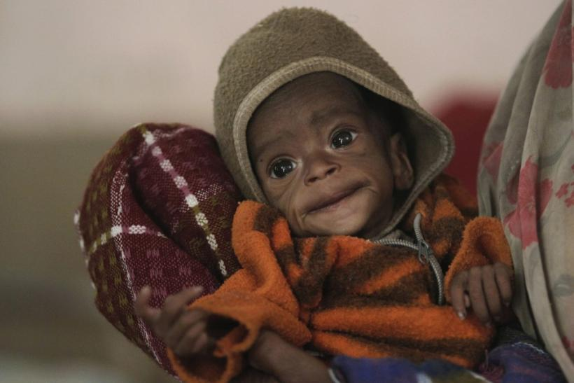 Starving African Child Belly Four month-old Vishakha