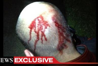 George Zimmerman Bloody