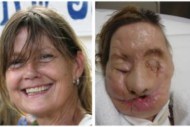 Before and After Pictures of Successful Face Transplants
