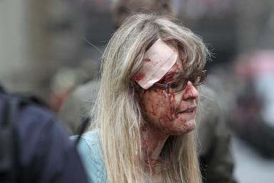 An injured woman is pictured after the explosion in Prague