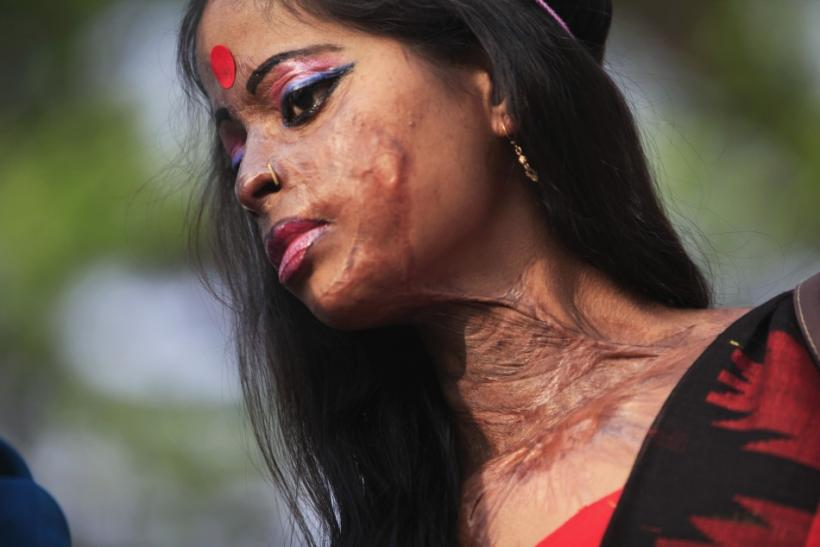 Hasina, a survivor of an acid attack, takes part in an awareness rally about the violence against women as they mark International Women's Day in Dhaka