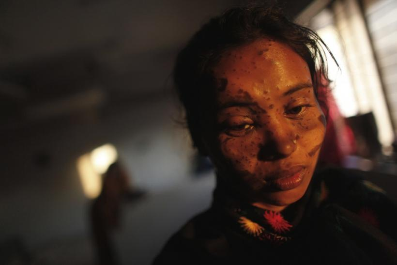 Asma Begum, a survivor of an acid attack, waits for treatment at the burn unit of the Dhaka Medical College in Dhaka