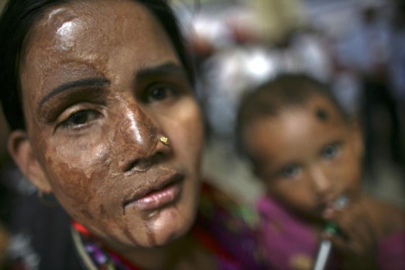 A survivor of an acid attack attends a rally with her child in Dhaka