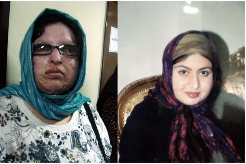 A combination photograph shows a woman identified as Ameneh before and after she was blinded with acid in an incident that happen in 2004 in Tehran