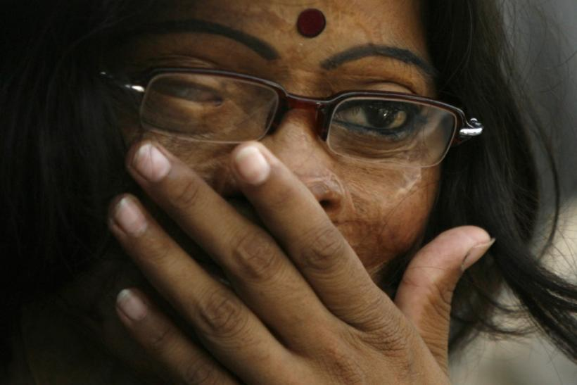 An acid attack survivor attends a conference in Dhaka