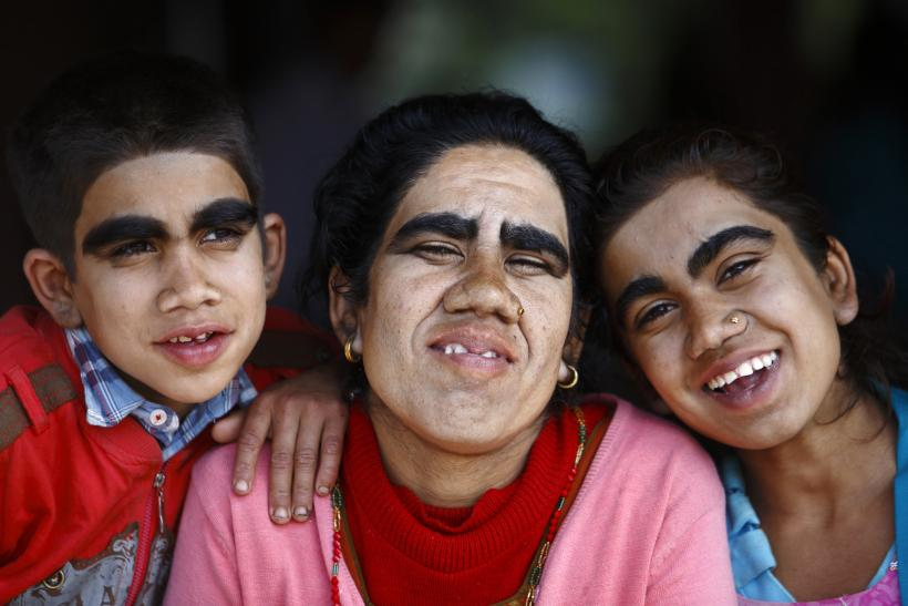 werewolf-syndrome-7